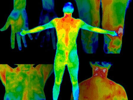 Thermography Ottawa, Breast Health, Inflammation, Pain, Cardiovascular, Concussions, Arthritis